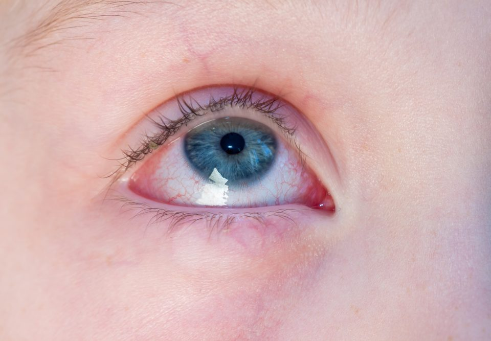 Urgent Eye CARE